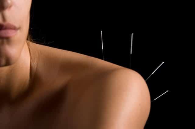 acupuncture-shoulder