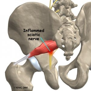 piriformis-tightness-300x300