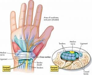 Carpal Tunnel Syndrome - Mississauga Pain Clinic