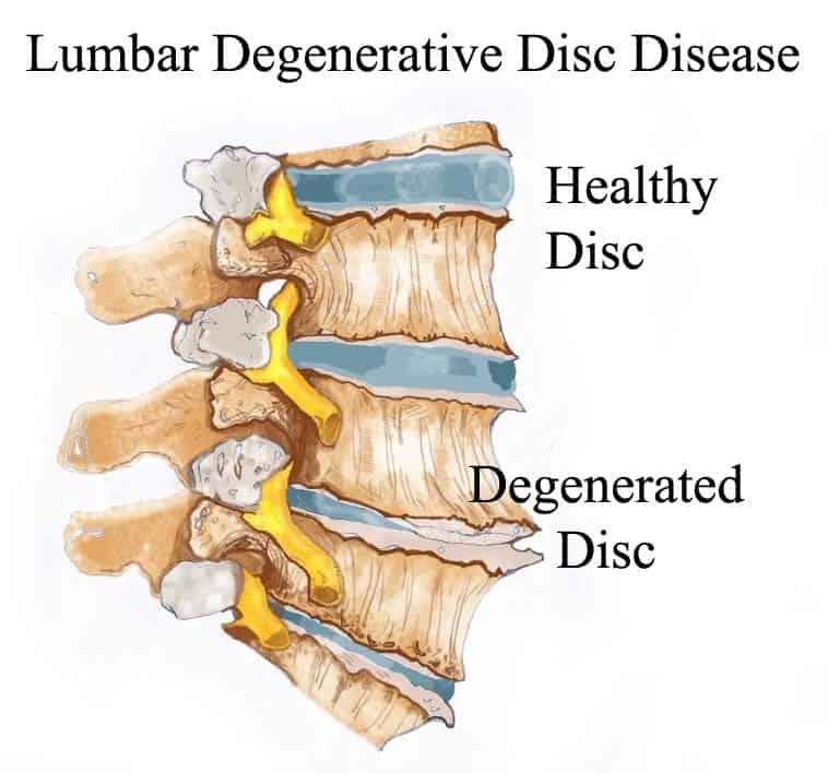 Lower Back Pain – Degenerative Disc Disease – Rupert Health Centre ...