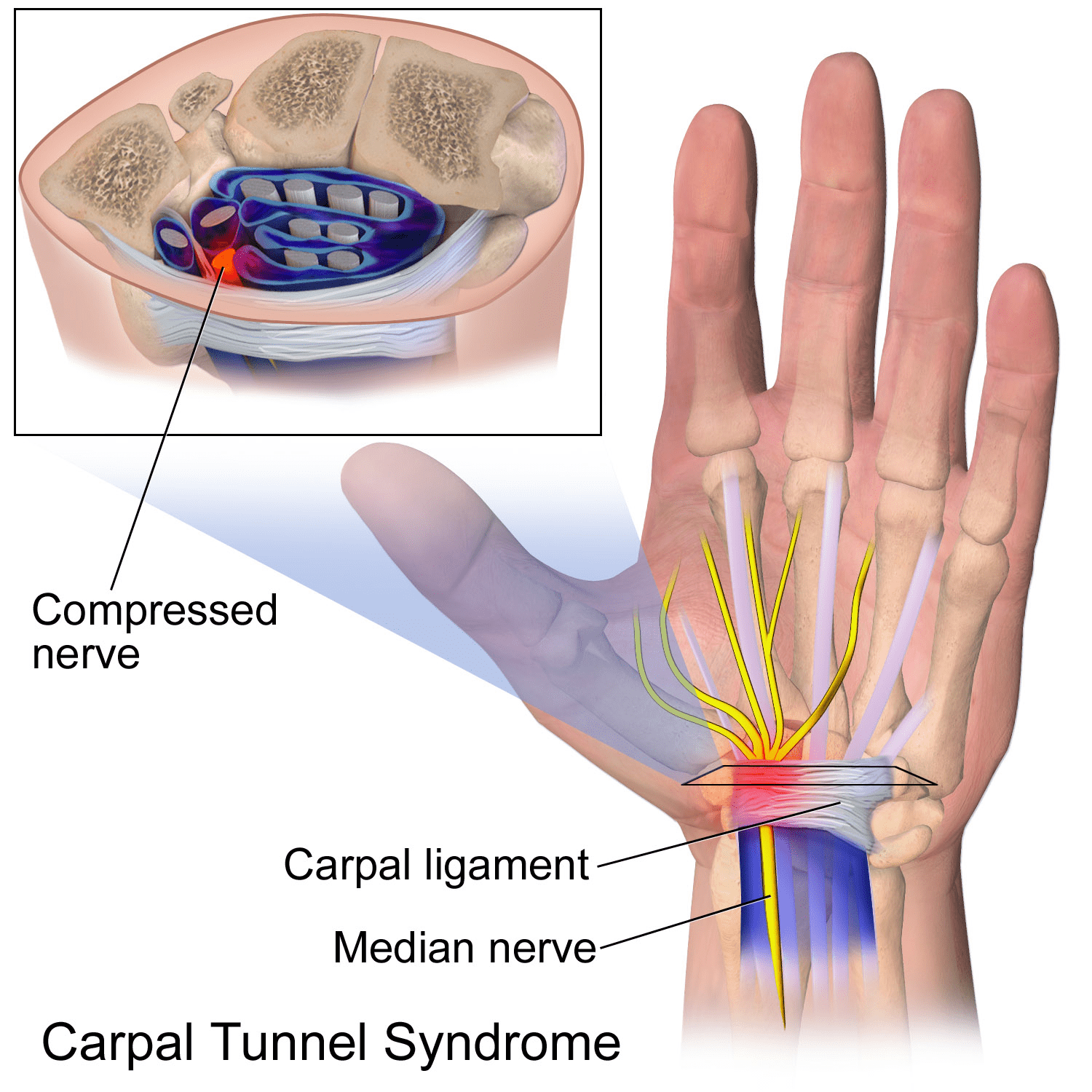 Carpal Tunnel Syndrome Mississauga Chiropractor And Physiotherapy