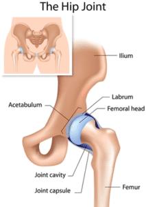 Hip Sprain Injury