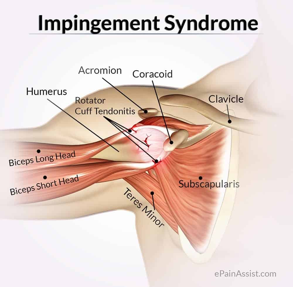 Shoulder Impingement Mississauga Chiropractor And Physiotherapy