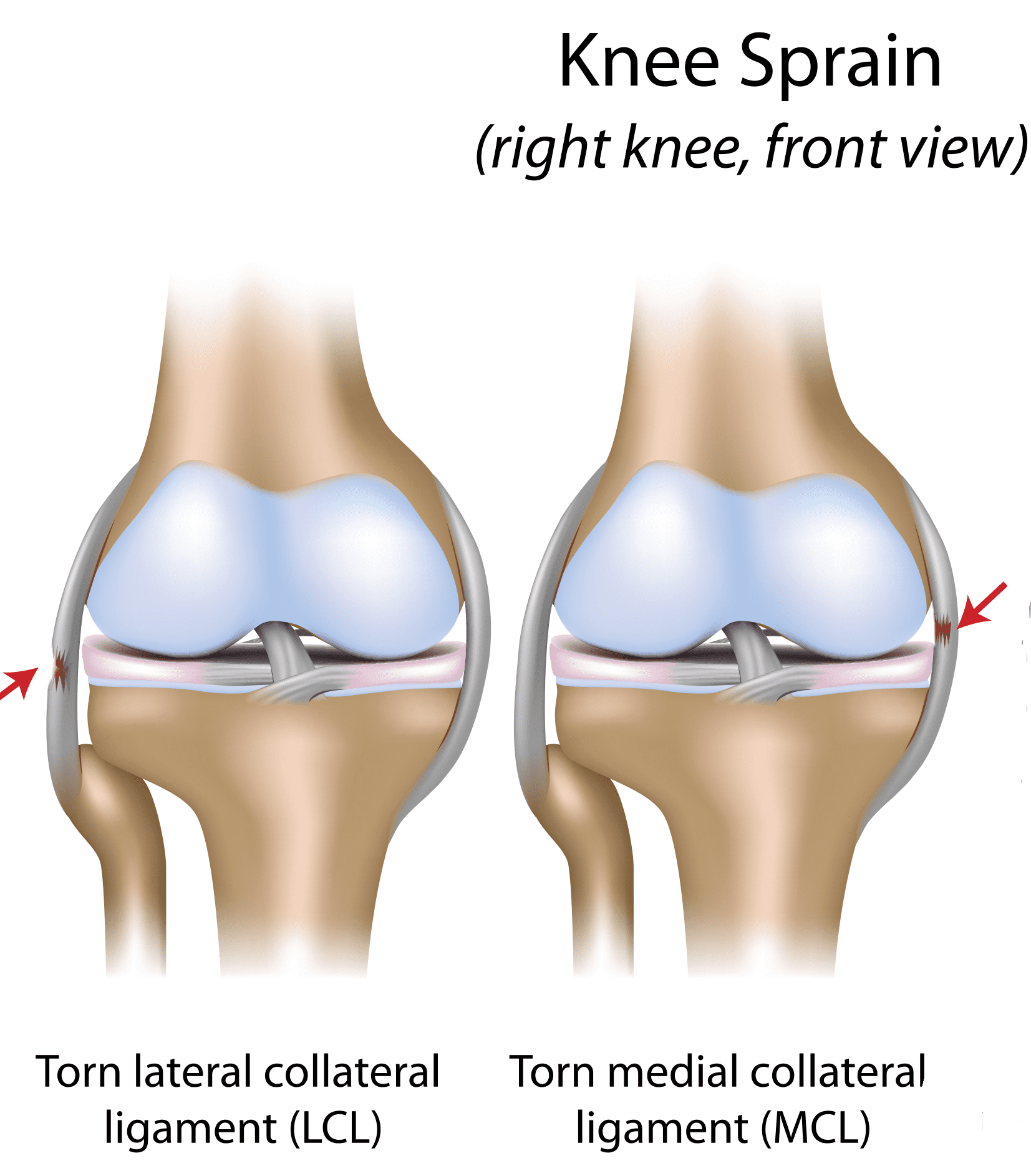 Mcl Medial Collateral Ligament Sprain Mississauga Chiropractor