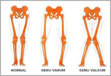 genu valgum mississauga chiropractor and physiotherapy clinic free consult