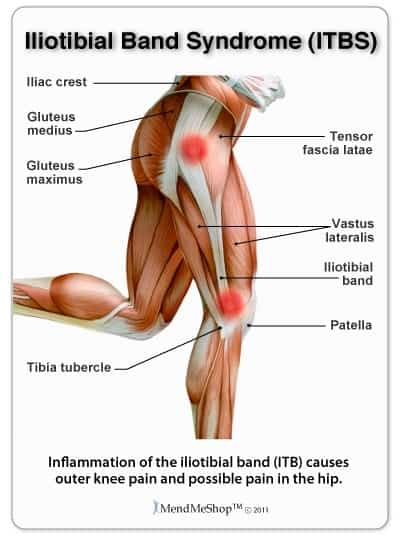 IT Band Syndrome ITBS Mississauga Chiropractor And Physiotherapy