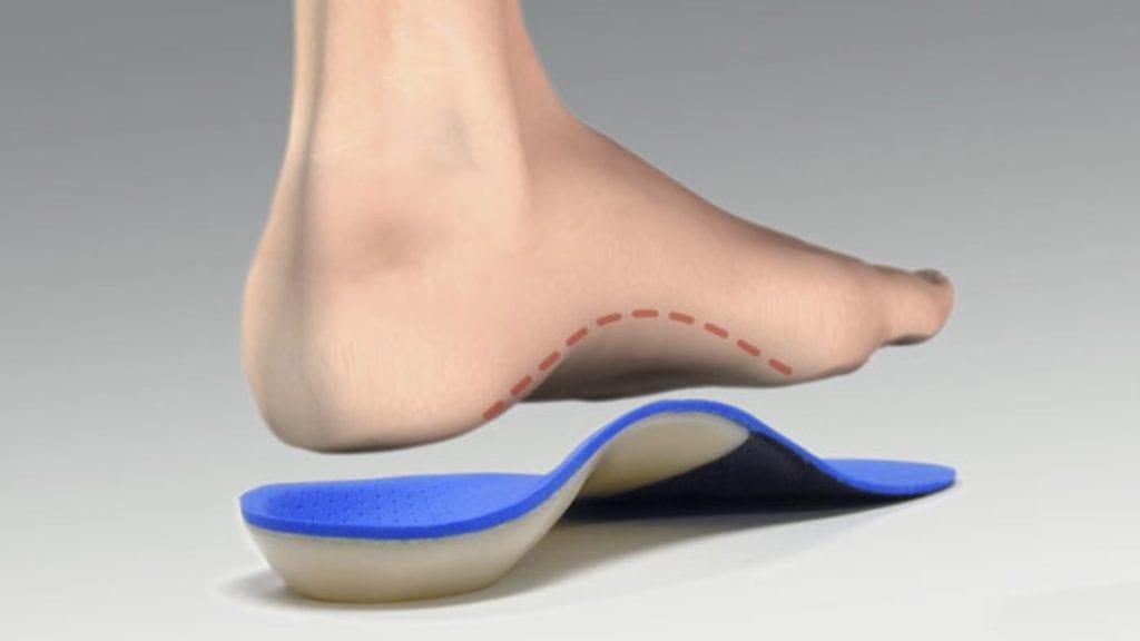 Mississauga Custom Foot Orthotics