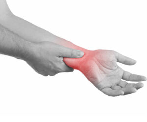 Mississauga Chiropractic Clinic Treating Carpal Tunnel Syndrome