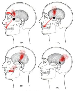 Jaw Trigger Point